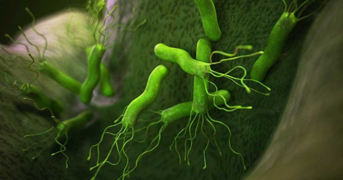 Helicobacter-pylori-1200x630.jpg