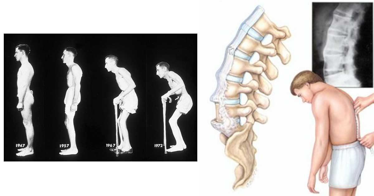 boli inflamatorii specifice articulațiilor