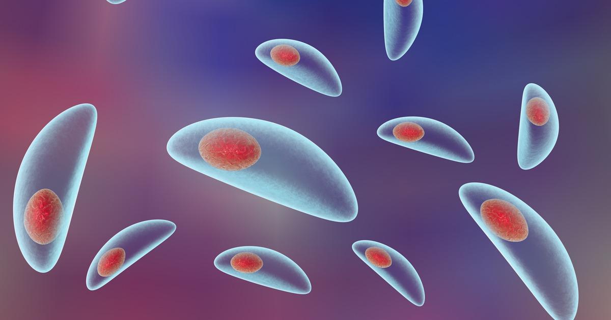 Toxoplasma gondii-Aviditate IgG – Spitalul Universitar de Urgenţă Militar Central Dr. Carol Davila