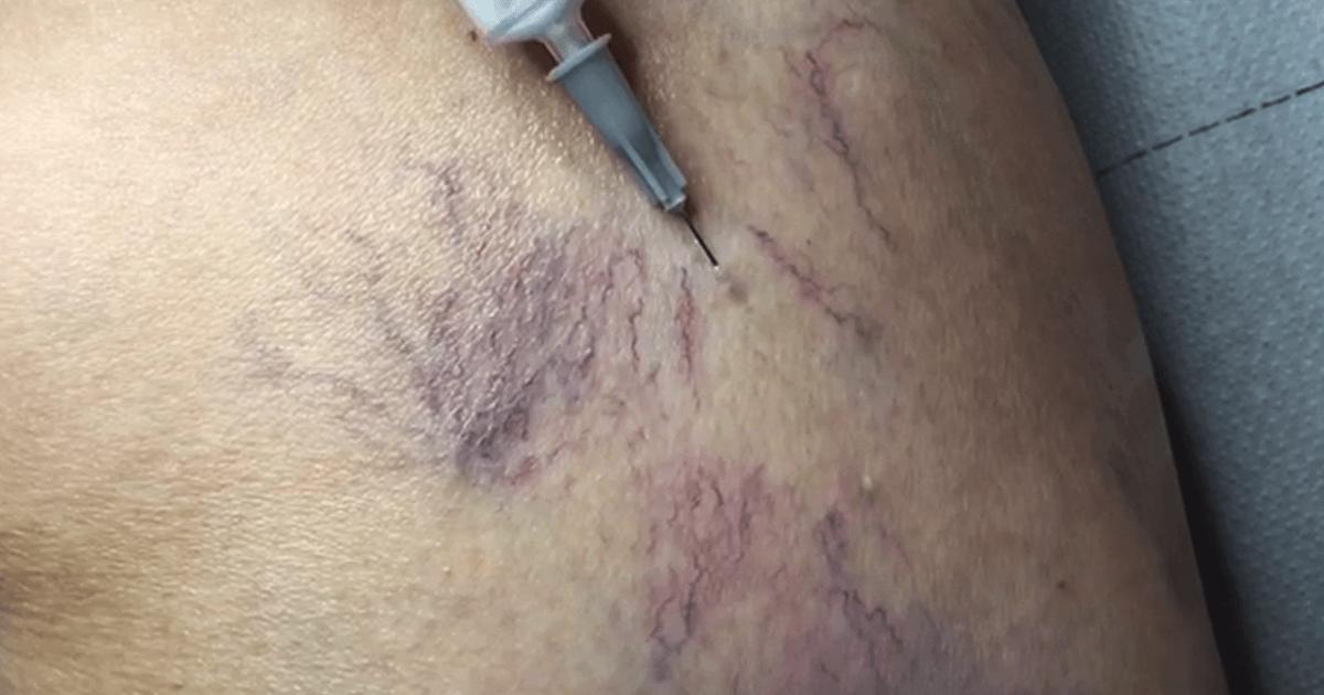 tratamentul varicozei varicoză la institut este dăunător)
