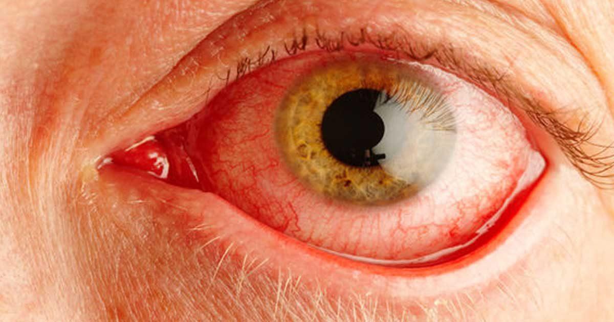 sindromul-de-ochi-uscat-1200x630.jpg