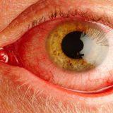 sindromul de ochi uscat