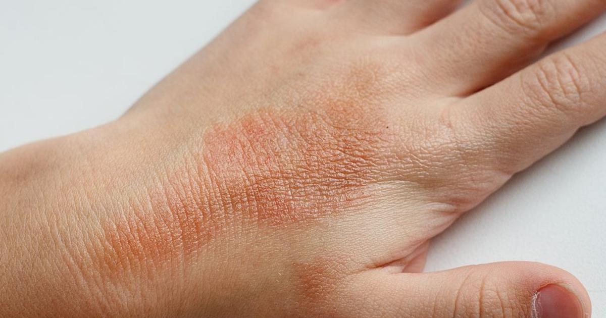 dermatita-atopica-1200x630.png