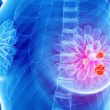 punctie biopsie mamara