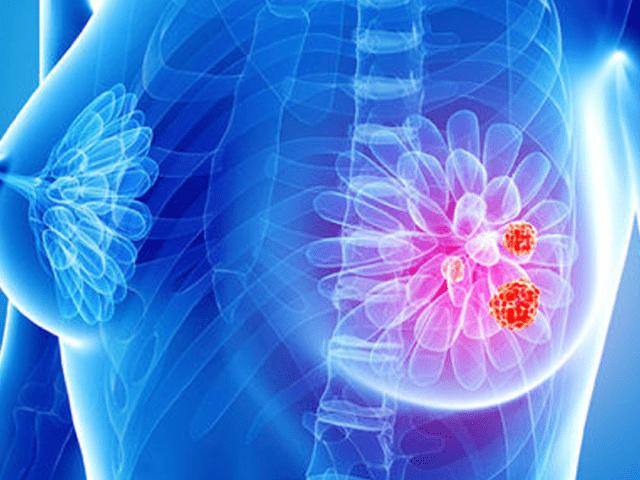 http://www.medstar2000.ro/wp-content/uploads/2018/06/punctie-biopsie-mamara-640x480.png