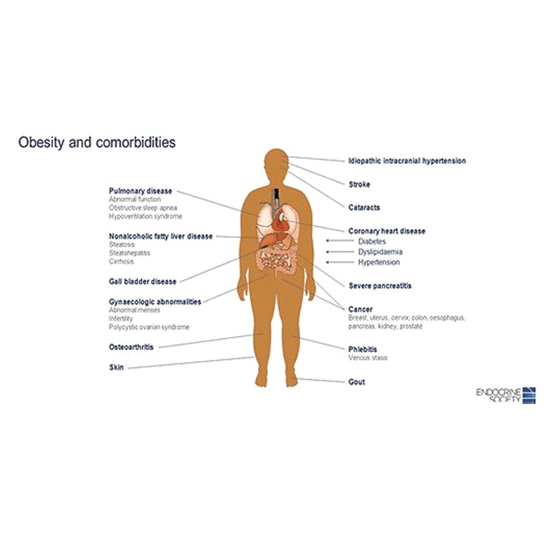 obezitatea-si-comorbiditatile-2.png