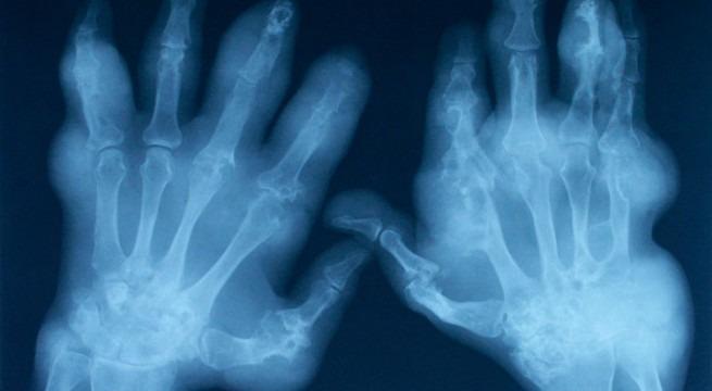 artrita-reumatoida.jpg