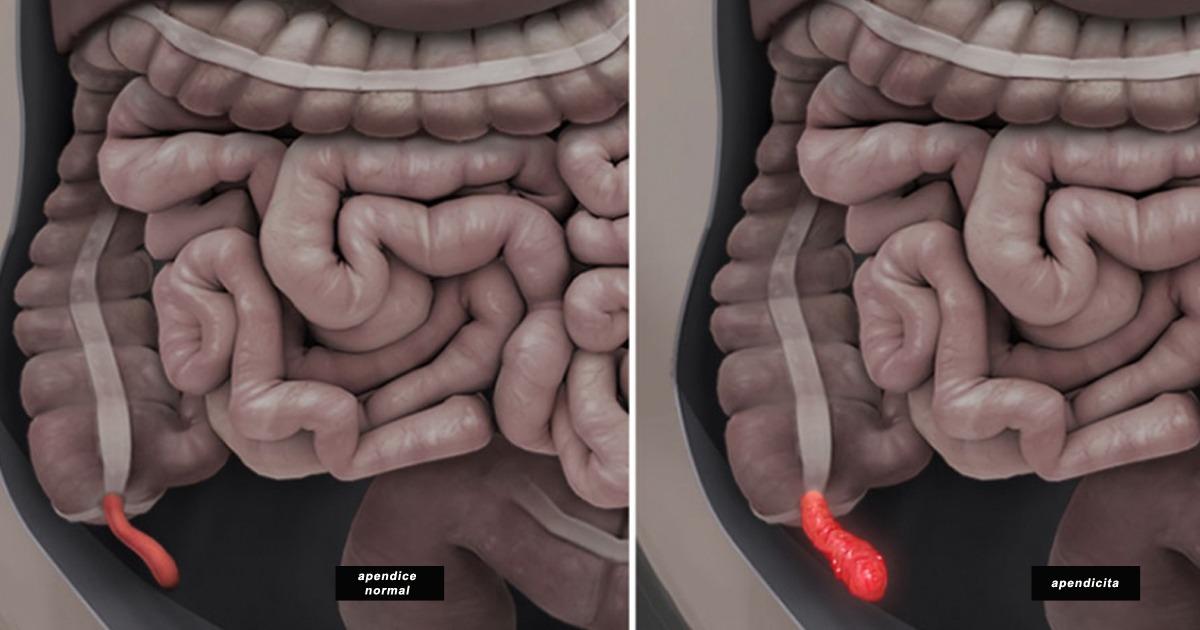 apendicita.jpg