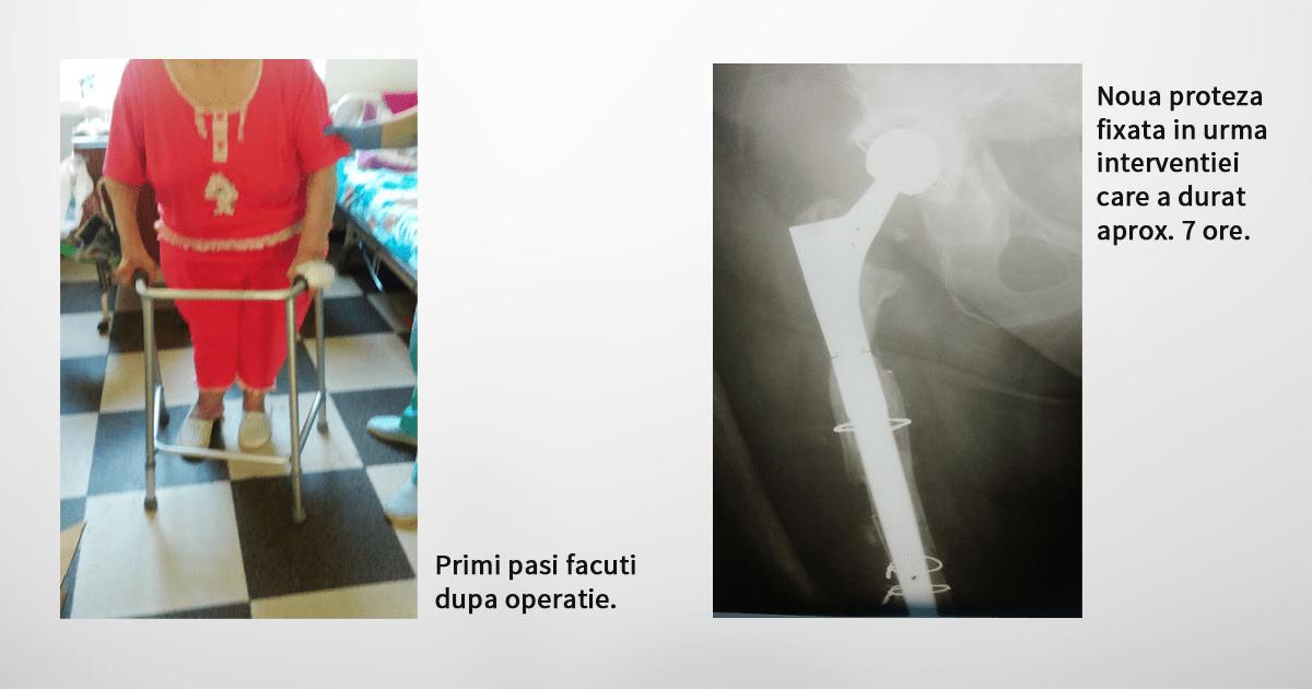 dupa-operatie.png