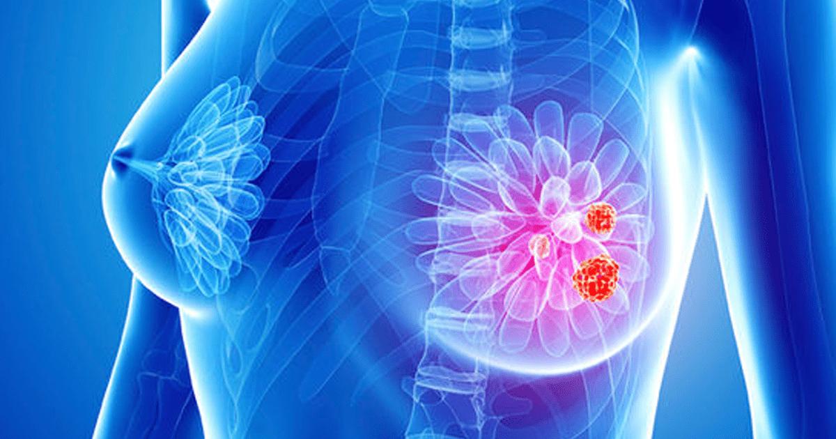 punctie-biopsie-mamara.png